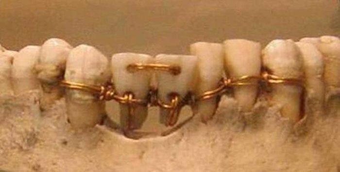 dentadura en el antiguo egipto