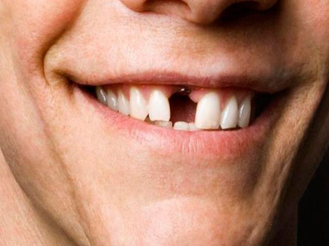 dientes partidos